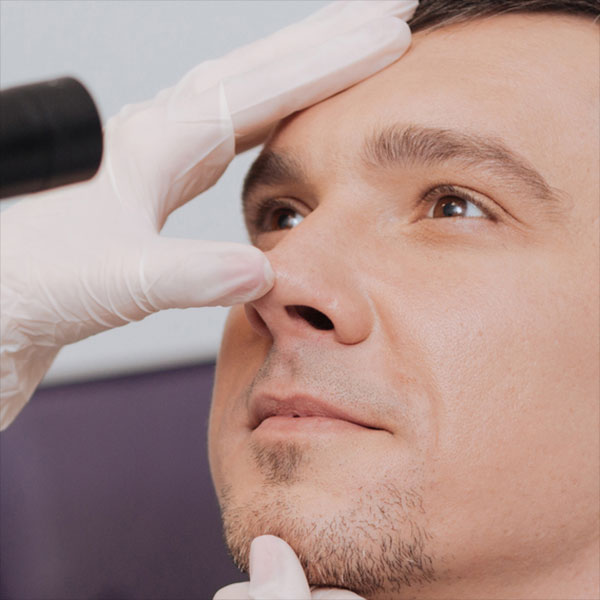 Nose Doctor in North Richland Hills and Grand Prairie, TX